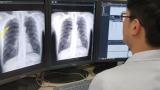 국산 의료 AI, 위암 조기발견 정확도 98.5% 달성…'의사 보조자' 합격점